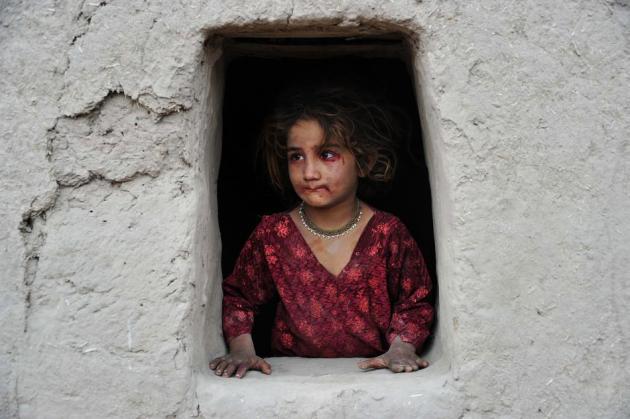 TOPSHOTS-AFGHANISTAN-UNREST-EDUCATION