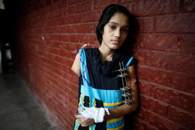 Rasheda, 15, who used to work for Abul Khair Steel Mills Ltd, stands outside a ward of the National Institute of Traumatology and Orthopaedic Rehabilitation in Dhaka